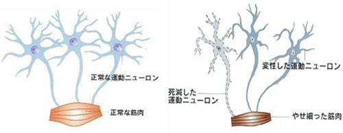 上位 運動 ニューロン 障害
